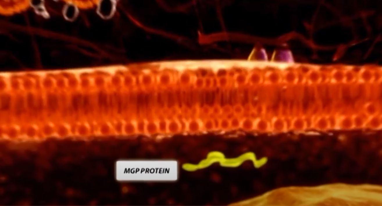 Aktivera MGP med Vitamin K2